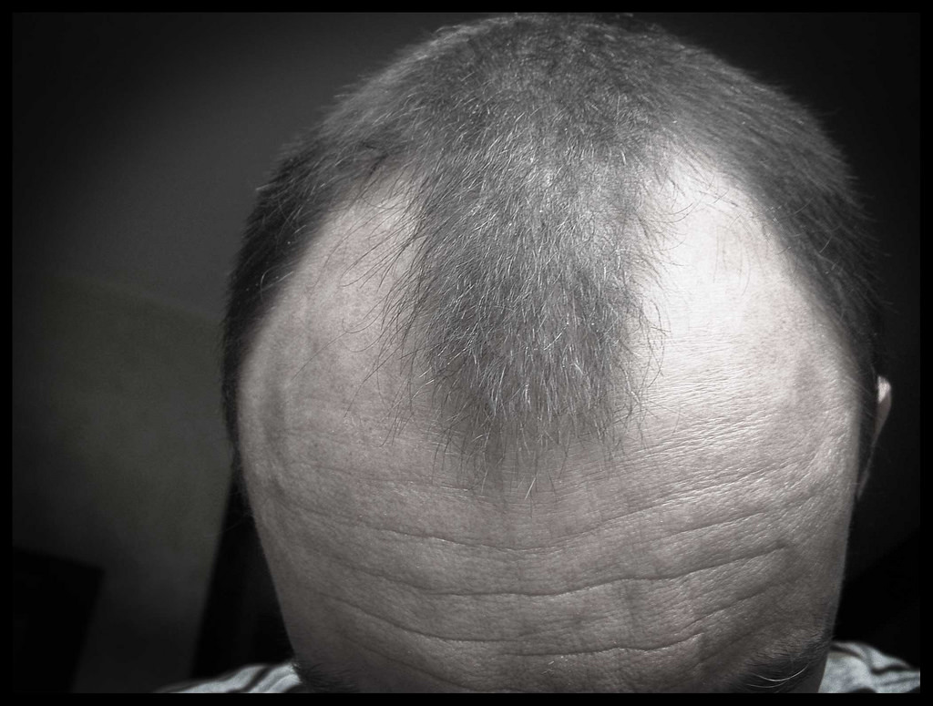 6 Ways to Tame Your Hairline - Affordable Comfort